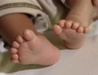 Индийской школьнице с 7-ю лишними пальцами на руках и ногах проведут операцию